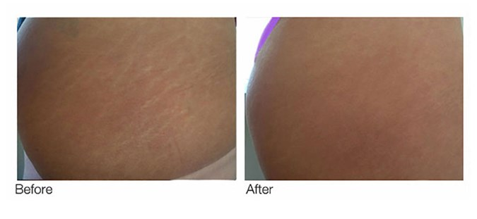 The Extreme New Way To Remove Your Stretch Marks | BEAUTY/crew