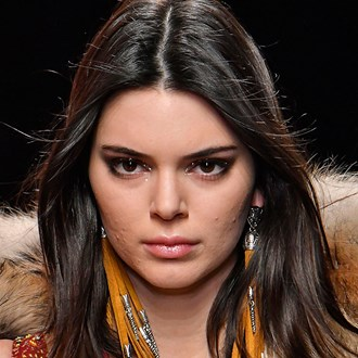 /media/26647/kendall-jenner-acne-scarring-square.jpg