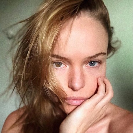 Latest High-Tech Professional Skin Treatments - Kate Bosworth